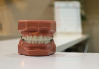 human jaw model with metal wired dental braces