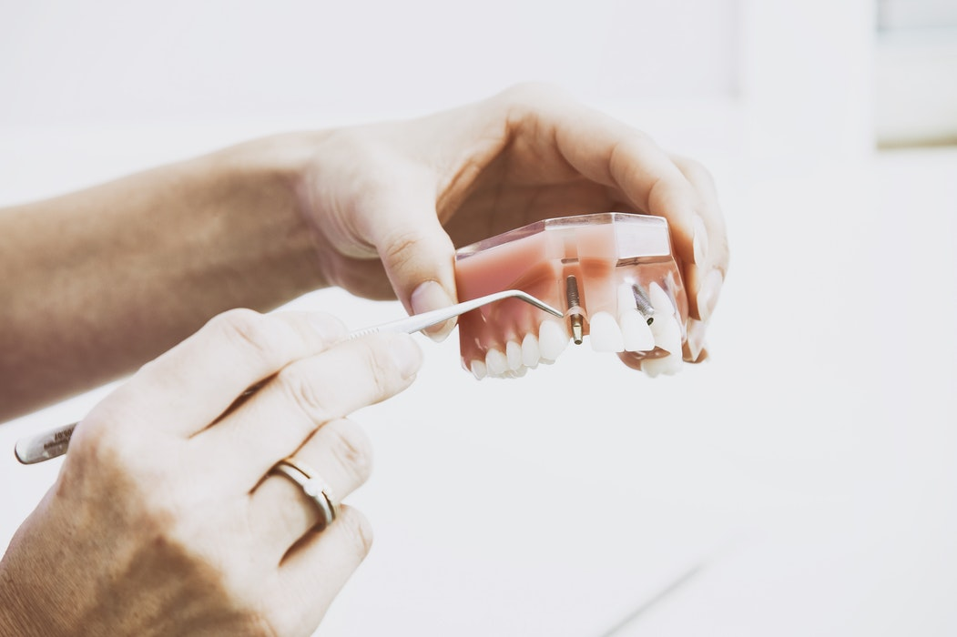 Dentist holding fake teeth to explain dental implants