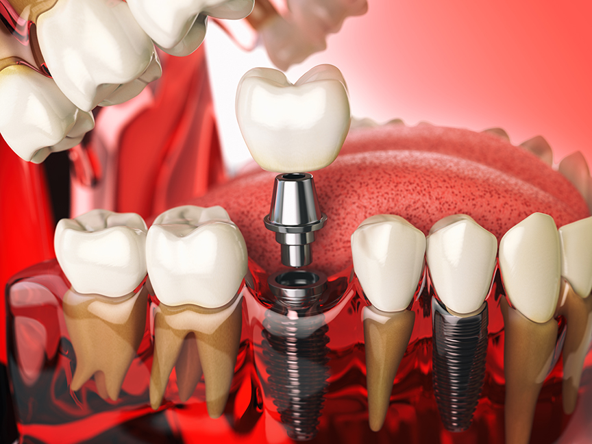 Model human teeth with dental implants