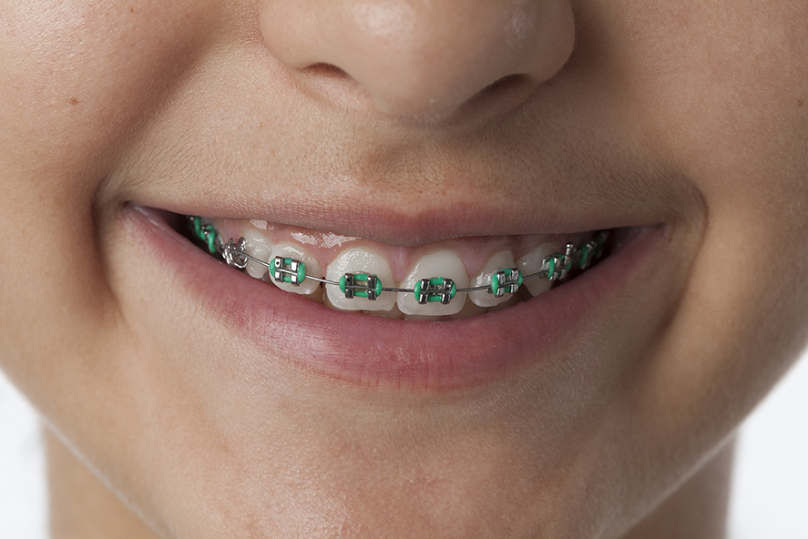 Close-up of a smiling young girl with dental braces