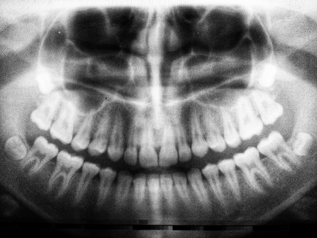 a dental xray with frontal view of the teeth