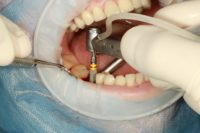 dental implant surgery