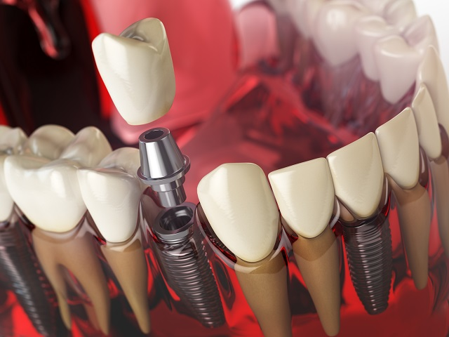 model of a tooth implant