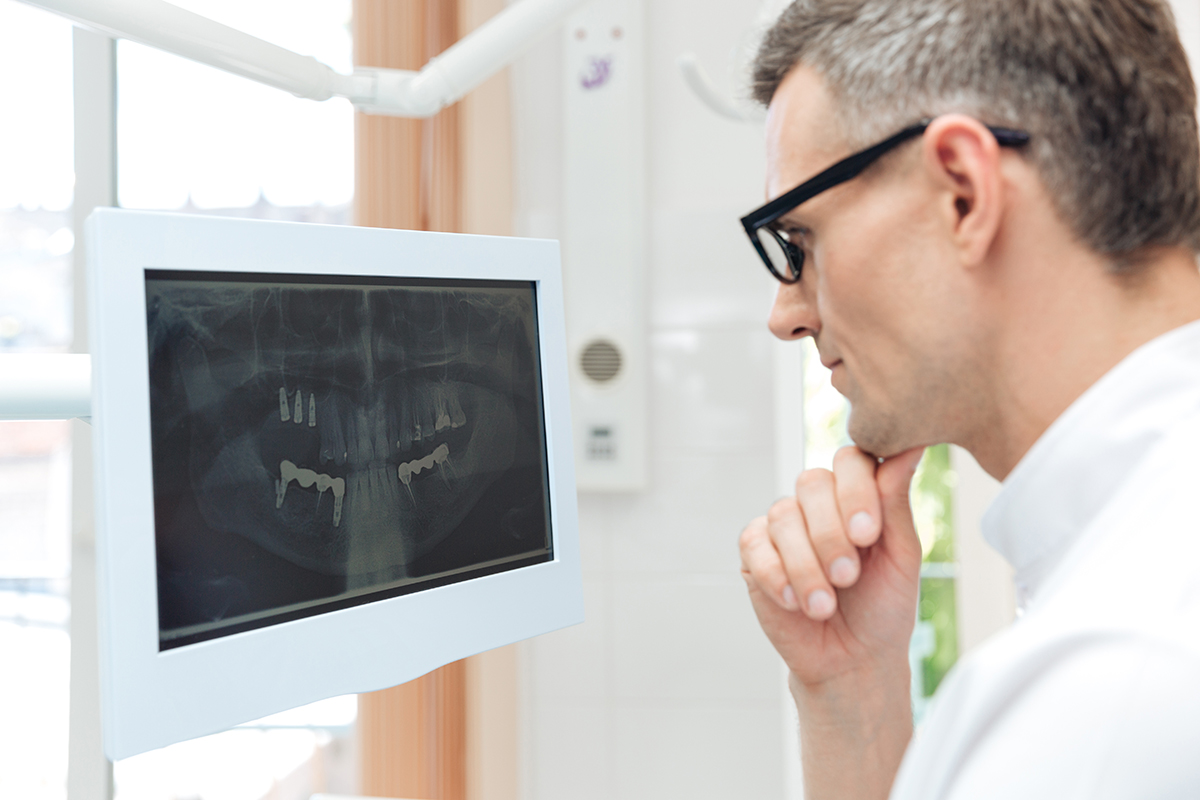 male dentist looking at teeth on digital xray monitor